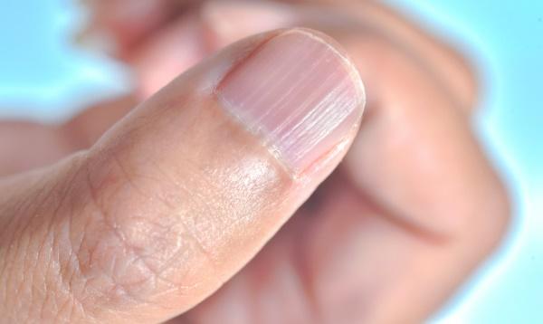 Linee verticali sulle unghie